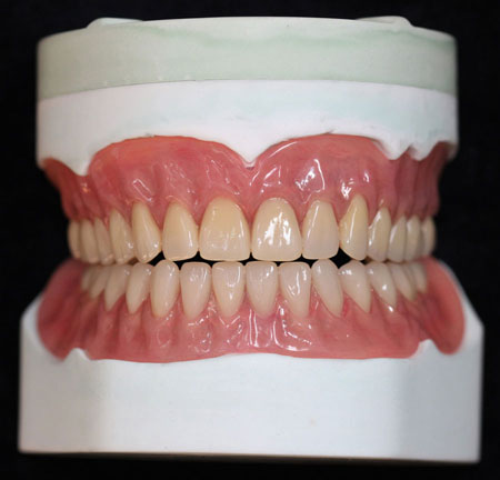 Acrylic Denture Over Implant Post